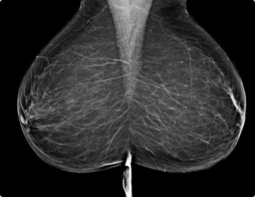mammographie seins
